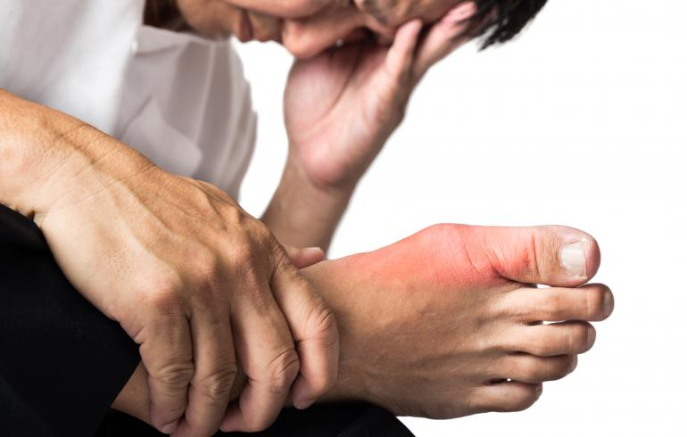 main of People Suffering from Gout Pain Know Just How Bad It Can Get