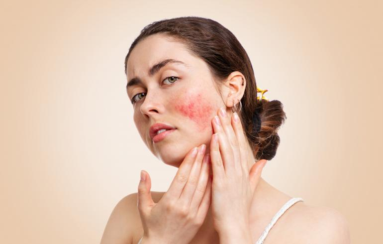 main of osacea Is Among the More Common Skin Conditions (goods)