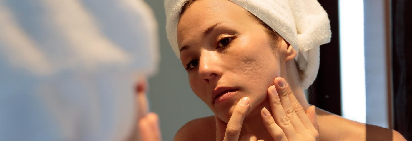 banner of Getting Treatment for Acne Scars Can Increase Confidence